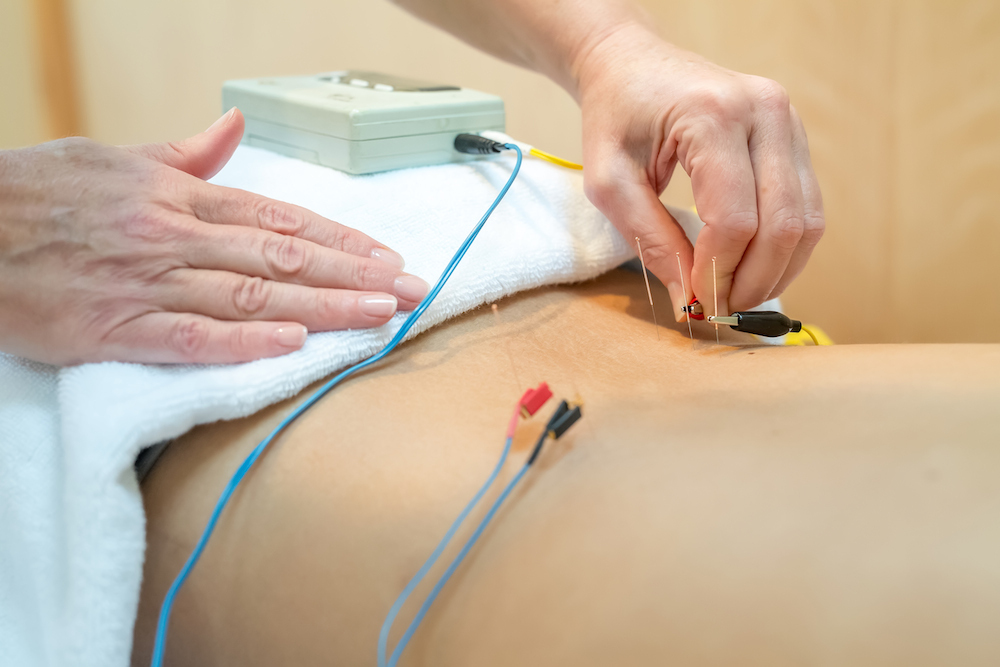 Электропунктурная рефлексотерапия